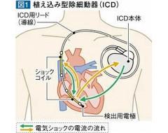 7)MRI対応ペースメーカーとICD...