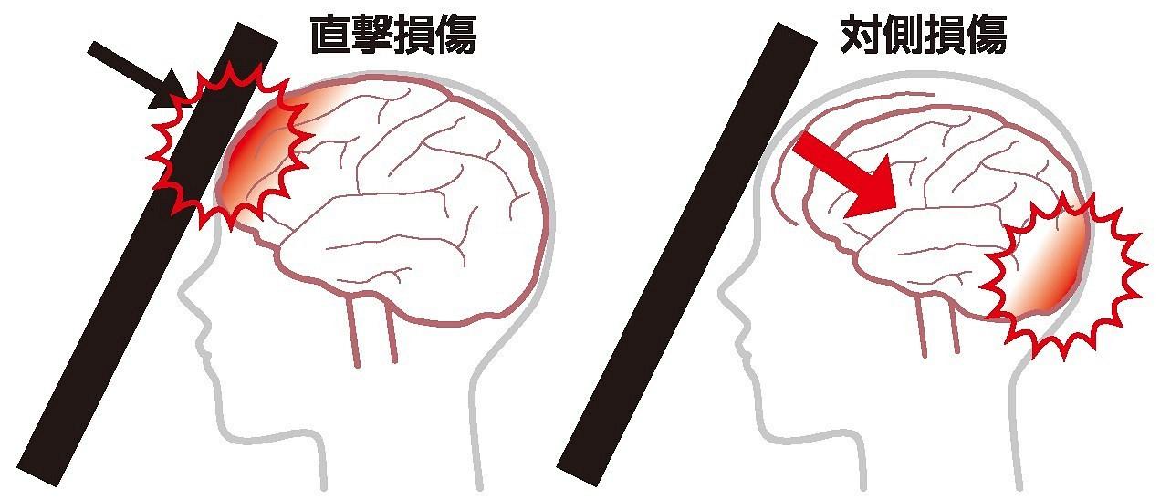 1)救急車が必要な頭部外傷 倉敷平成病院脳神経外科部長 重松秀明|岡山の医療健康ガイド MEDICA