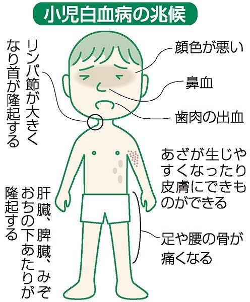 小児 白血病 初期 症状 子どもが白血病!?どのような初期症状がでるの?